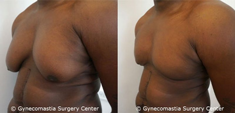 Heavy Man with Severe Gynecomastia Before and After Surgery Oblique View