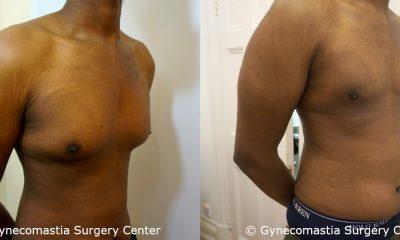 Mild Gynecomastia 10