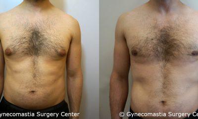 Mild Gynecomastia 12