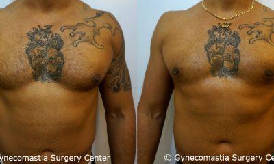 Mild Gynecomastia 14