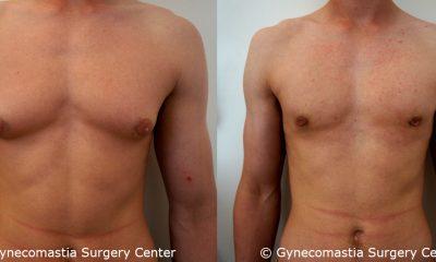 Mild Gynecomastia 15