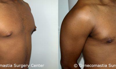 Mild Gynecomastia 4 2