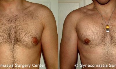 Mild Gynecomastia 4
