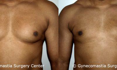 Mild Gynecomastia 5
