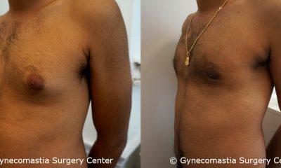 Mild Gynecomastia 6