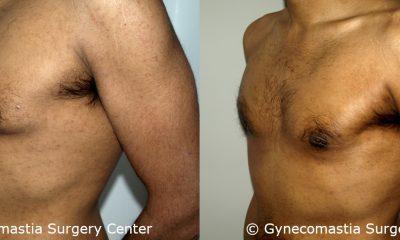 Mild Gynecomastia 7 2