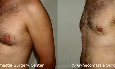 Mild Gynecomastia 7