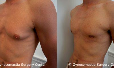 Moderate Gynecomastia 1