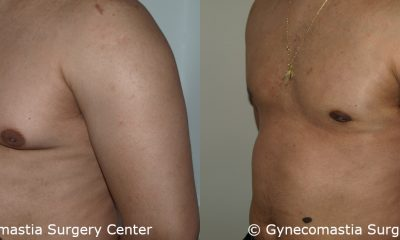 Moderate Gynecomastia 10