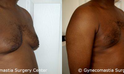Moderate Gynecomastia 11