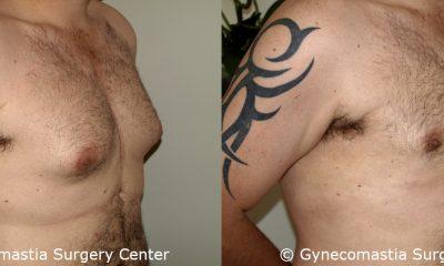 Moderate Gynecomastia 2 2