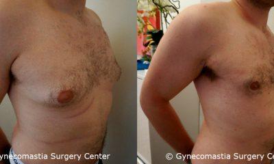 Moderate Gynecomastia 2