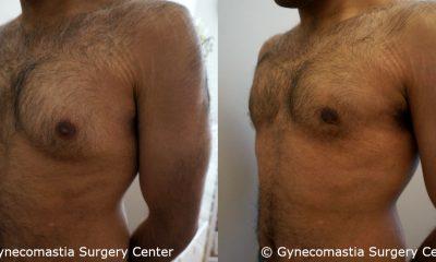 Moderate Gynecomastia 3 2