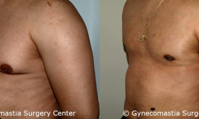 Moderate Gynecomastia 3