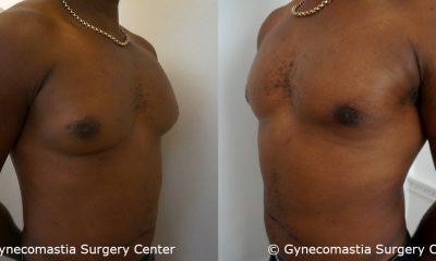 Moderate Gynecomastia 4