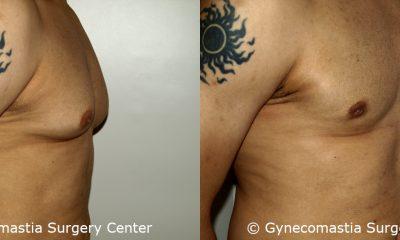 Moderate Gynecomastia 6