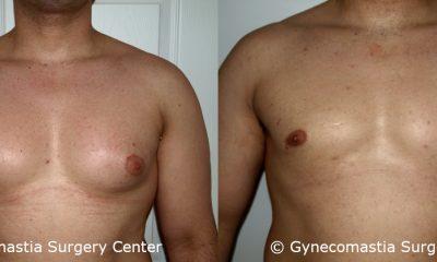 Moderate Gynecomastia 9
