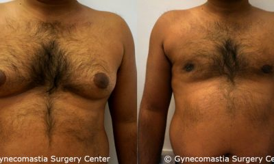Severe Gynecomastia 1