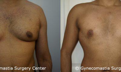 Severe Gynecomastia 3