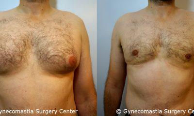 Severe Gynecomastia 4