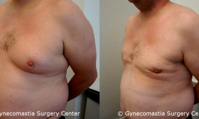 Severe Gynecomastia 6