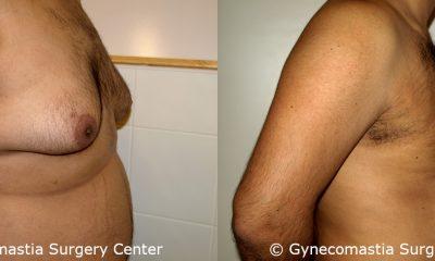 Severe Gynecomastia 7