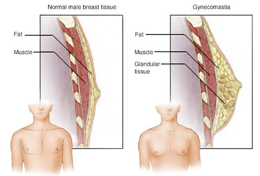What is Gynecomastia 2